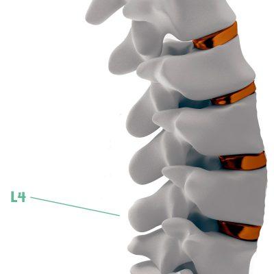 Coluna Vertebral L4