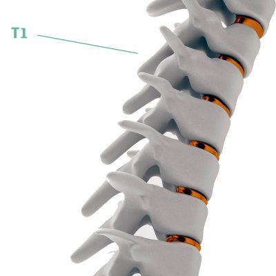 Coluna Vertebral T1