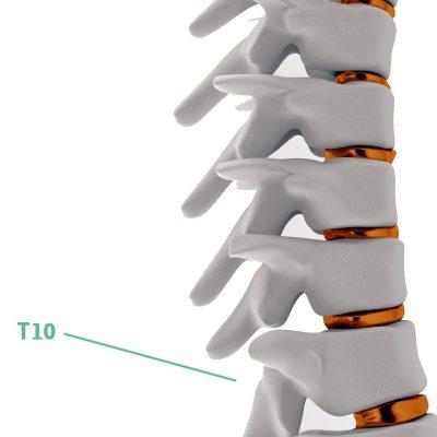 Coluna Vertebral T10