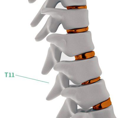 Coluna Vertebral T11