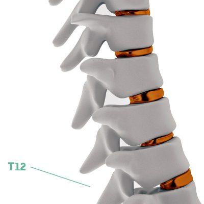 Coluna Vertebral T12