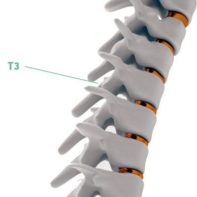 Coluna Vertebral T3