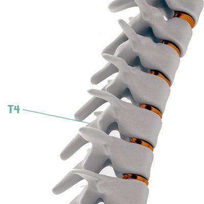 Coluna Vertebral T4