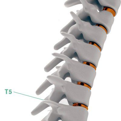 Coluna Vertebral T5